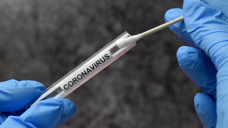 Testen op Coronavirus (Covid-19)